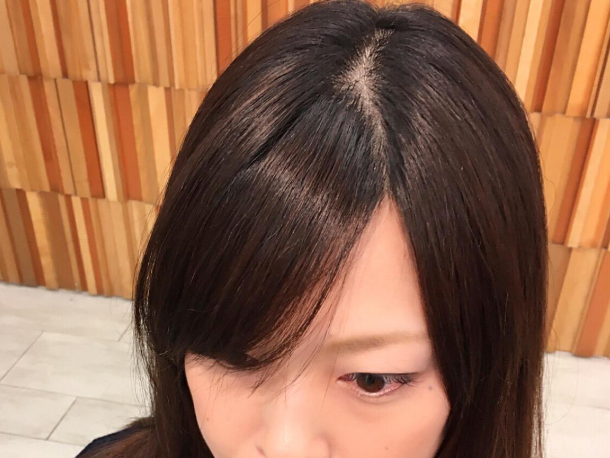 前髪 割れる 原因